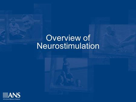 Confidential - Property of ANSConfidential - Property of ANS Overview of Neurostimulation.
