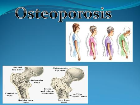 What is it? Osteoporosis is a disorder that is common of inflicting in a million Australians in which the bones start to become fragile and brittle leading.