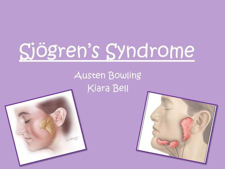 Sjögren's Syndrome Austen Bowling Kiara Bell. What is Sjögren's Syndrome? a chronic disorder in which the white blood cells attack the saliva and tear.
