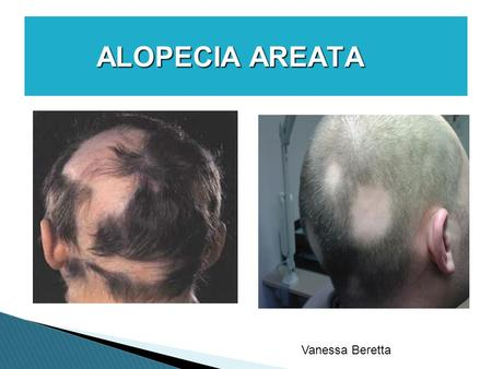ALOPECIA AREATA ALOPECIA AREATA Vanessa Beretta.  Alopecia is a condition affecting humans in which hair is lost from some or all areas of the body.