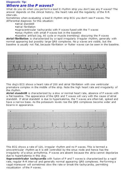 Diagnostic Tip: Where are the P waves? What do you do when you perform a lead II rhythm strip you don't see any P waves? The answer depends on the clinical.