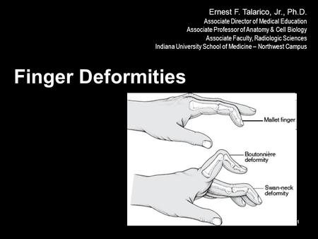 IUSM-NW F12 1 Finger Deformities Ernest F. Talarico, Jr., Ph.D. Associate Director of Medical Education Associate Professor of Anatomy & Cell Biology Associate.