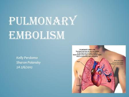 PULMONARY EMBOLISM Kelly Perdomo Sharon Polansky 2A 2/6/2012.