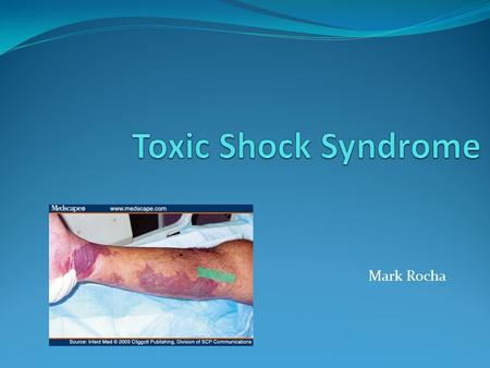 Mark Rocha. Toxic Shock Syndrome is a rare, often life threatening illness that results from an infection and can impact several organ systems, such as.