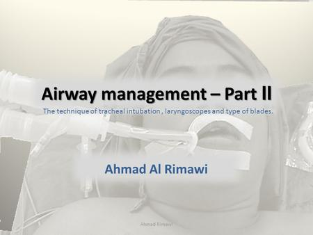 Airway management – Part II Ahmad Al Rimawi The technique of tracheal intubation, laryngoscopes and type of blades. Ahmad Rimawi.