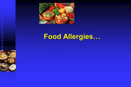 Food Allergies…. Food Allergies The food of one may be poison for another. Lucretius De Rerum Natura.