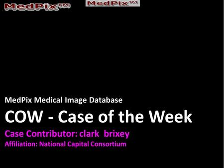 MedPix Medical Image Database COW - Case of the Week Case Contributor: clark brixey Affiliation: National Capital Consortium.
