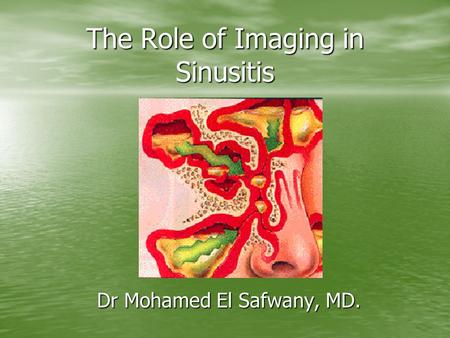 The Role of Imaging in Sinusitis Dr Mohamed El Safwany, MD.