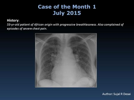 History : 53-yr-old patient of African origin with progressive breathlessness. Also complained of episodes of severe chest pain. Case of the Month 1 July.