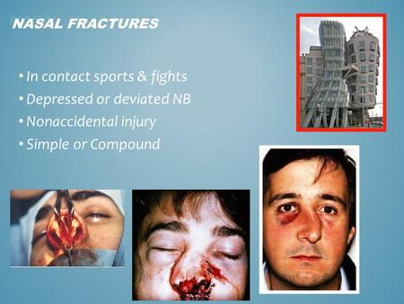 In contact sports & fights Depressed or deviated NB Nonaccidental injury Simple or Compound 1 NASAL FRACTURES.
