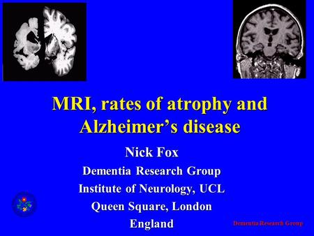 Dementia Research Group MRI, rates of atrophy and Alzheimer's disease Nick Fox Dementia Research Group Institute of Neurology, UCL Queen Square, London.