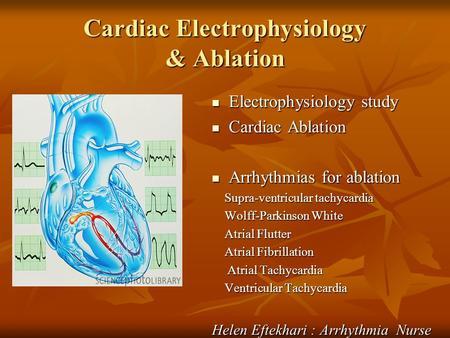 Electrophysiology Study: How EP Doctors Diagnose AFib