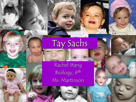 Tay Sachs Rachel Stang Biology, 6 th Ms. Martinson.