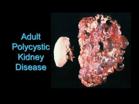 Adult Polycystic Kidney Disease.  Autosomal dominant  1-2 per 1000  Cysts present at birth, progressively enlarge to compress renal parenchyma  Occurs.