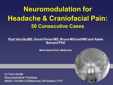 Neuromodulation for Headache & Craniofacial Pain: 50 Consecutive Cases Paul Verrills MD, David Vivian MD, Bruce Mitchell MD and Adele Barnard PhD Metro.
