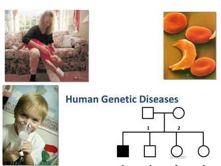 2006-2007 Human Genetic Diseases 12 3456 Pedigree analysis Pedigree analysis reveals Mendelian patterns in human inheritance – data mapped on a family.