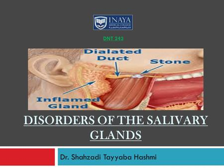 Disorders of the salivary glands