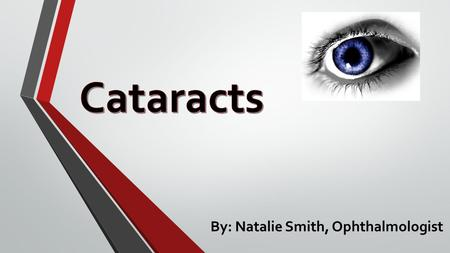 By: Natalie Smith, Ophthalmologist. What are cataracts? Cataracts are a clouding of the lens of the eye that can impair vision. There are 4 types of cataracts: