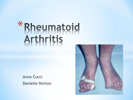 Anna Cucci Danielle Norton. * Rheumatoid arthritis (RA) is a long-term autoimmune disease that leads to inflammation of the joints and surrounding tissues.