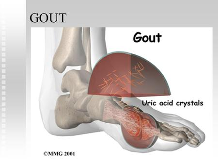 GOUT. Gout is a familial metabolic disease characterized by recurrent episodes of acute arthritis due to deposits of monosodium urate crystals. The metatarsophalangeal.