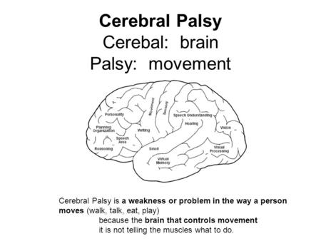 Cerebral Palsy Cerebal: brain Palsy: movement Cerebral Palsy is a weakness or problem in the way a person moves (walk, talk, eat, play) because the brain.