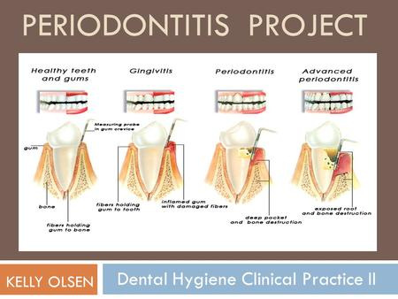 Periodontitis Project