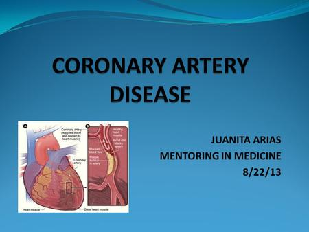 JUANITA ARIAS MENTORING IN MEDICINE 8/22/13. CORONARY ARTERY DISEASE Coronary Artery Disease takes place when the coronary arteries are hardened and narrowed.