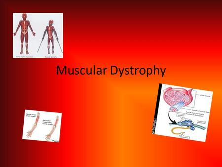 Muscular Dystrophy. What it is… Muscular Dystrophy is a family of hereditary disease that cause progressive and steady muscle weakening. Duchenne and.
