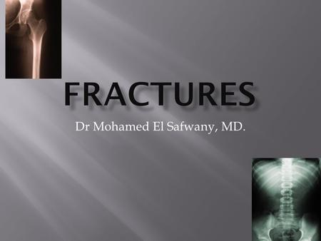 Dr Mohamed El Safwany, MD..  The student should be able at the end of this lecture to recognize various radiographic principles of fractures.