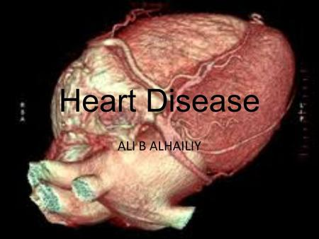 Heart Disease ALI B ALHAILIY. Cardiovascular disease refers to any disease that affects the cardiovascular system. The causes of cardiovascular disease.