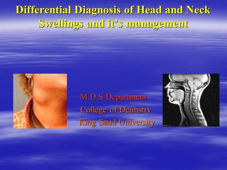 Differential Diagnosis of Head and Neck Swellings and it's management M.D.S Department College of Dentistry College of Dentistry King Saud University King.