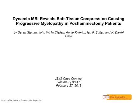 Dynamic MRI Reveals Soft-Tissue Compression Causing Progressive Myelopathy in Postlaminectomy Patients by Sarah Stamm, John W. McClellan, Annie Knierim,