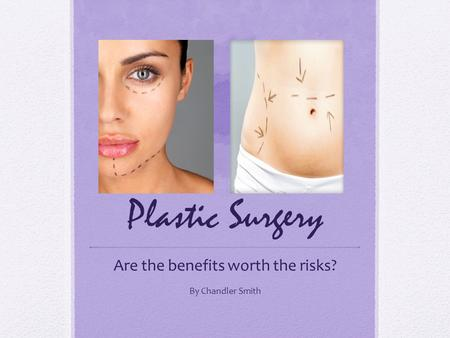 Plastic Surgery Are the benefits worth the risks? By Chandler Smith.