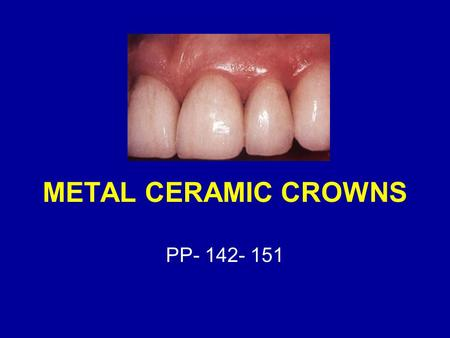 METAL CERAMIC CROWNS PP- 142- 151.