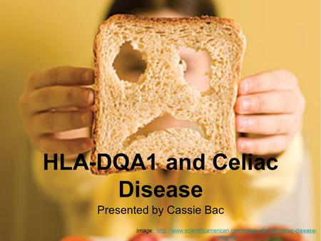 HLA-DQA1 and Celiac Disease Presented by Cassie Bac Image:  insightshttp://www.scientificamerican.com/article.cfm?id=celiac-disease-