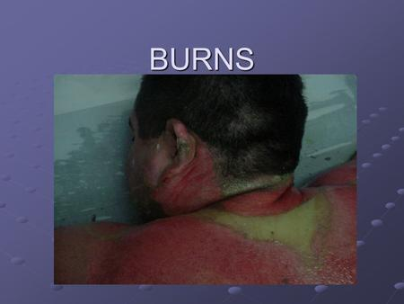 BURNS. Burns Factors to Consider DepthExtent Location - face, airway, hands, feet, joints, genitalia Age.