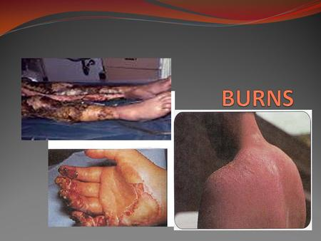 BURNS Burn injury and the number of deaths - dropped <strong>in</strong> the past 10 years -decrease is from: -use of smoke detectors -creation of regional burn centers.