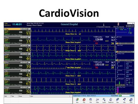 CardioVision. CardioVision = Hospital Monitoring + Holter ECG….....