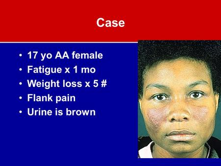 Case 17 yo AA female Fatigue x 1 mo Weight loss x 5 # Flank pain Urine is brown.