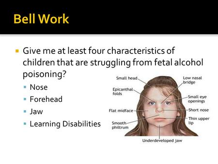  Give me at least four characteristics of children that are struggling from fetal alcohol poisoning?  Nose  Forehead  Jaw  Learning Disabilities.