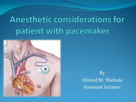 By Ahmed M. Shehata Assistant lecturer. INTRODUCTION 30,000,000 patients worldwide have been implanted pacemakers while 3,000,000- 5,000,000 have a Implantable.