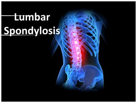 Lumbar Spondylosis. CONTENT… Anatomy of the vertebral column Anatomy of the vertebrae What is spondylosis? Causes and Risk Factors Signs and symptoms.