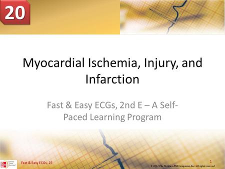Fast & Easy ECGs, 2E © 2013 The McGraw-Hill Companies, Inc. All rights reserved. Myocardial Ischemia, Injury, and Infarction Fast & Easy ECGs, 2nd E –