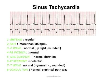 1 Sinus Tachycardia 1- RHYTHM : regular 2-RATE : more than 100bpm. 3- P WAVE : normal (up right,rounded ) 4-PR INTERVAL : normal 5- QRS COMPLEX : normal.