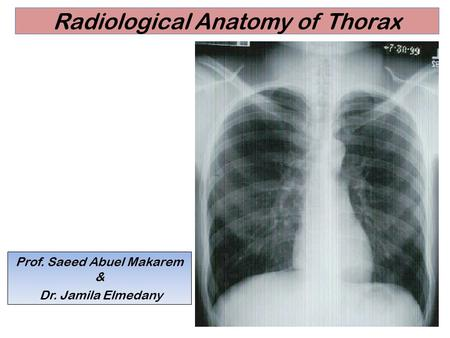 Radiological Anatomy of Thorax Prof. Saeed Abuel Makarem & Dr. Jamila Elmedany.