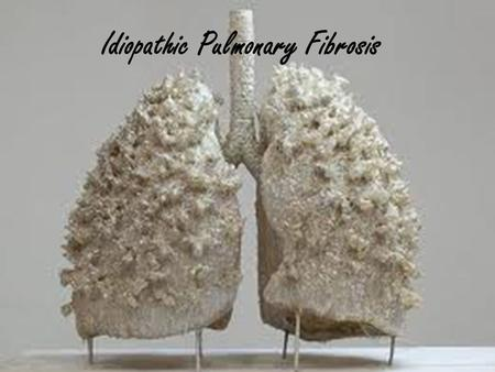 Idiopathic Pulmonary Fibrosis. What is Idiopathic Pulmonary Fibrosis? Idiopathic Pulmonary Fibrosis (IPF) is a disease in which inflammation of Lung parenchyma.