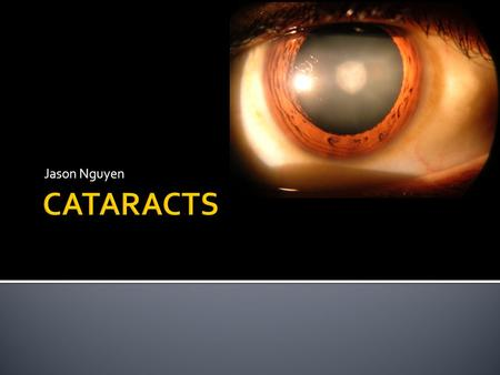 Jason Nguyen.  A cataract is a clouding of the eye's natural lens (lens protein denature), which lies behind the iris and the pupil.  Light from the.