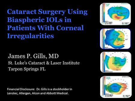 Cataract Surgery Using Biaspheric IOLs in Patients With Corneal Irregularities James P. Gills, MD St. Luke's Cataract & Laser Institute Tarpon Springs.