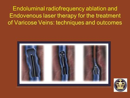 Endoluminal radiofrequency ablation and Endovenous laser therapy for the treatment of Varicose Veins: techniques and outcomes.