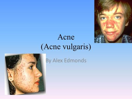 Acne (Acne vulgaris) By Alex Edmonds. What is the disease? Acne vulgaris is a disease that is when you get pimples on your body.